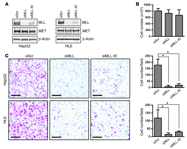 MLL is required for HGF-induced cell invasion. (A) siRNA-mediated knockd...