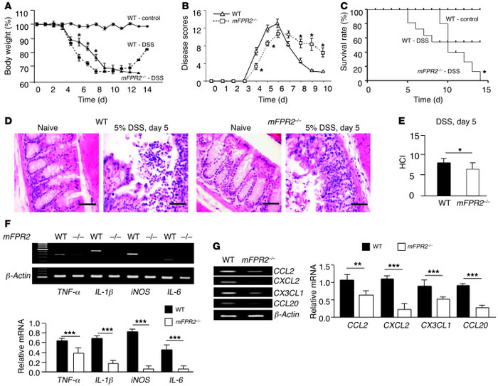 DSS-induced mouse acute colitis. Mice were given 5% DSS in drinking wate...