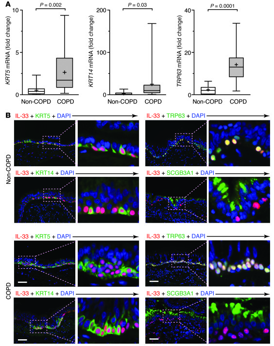 Localization of IL-33 expression to a subset of airway basal cells in CO...