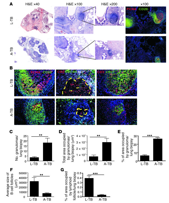Ectopic lymphoid structures are associated with immune control during TB...