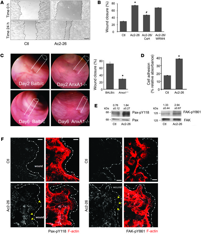 ANXA1 regulates wound healing via FPR1 signaling in IECs and stimulates ...