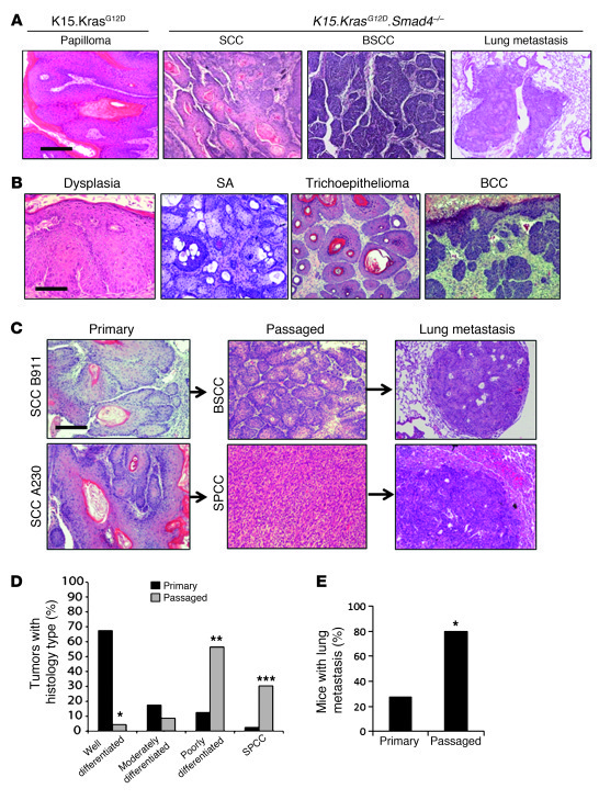 Primary and passaged tumor types in K15.KrasG12D.Smad4–/– mice.   (A) H&...