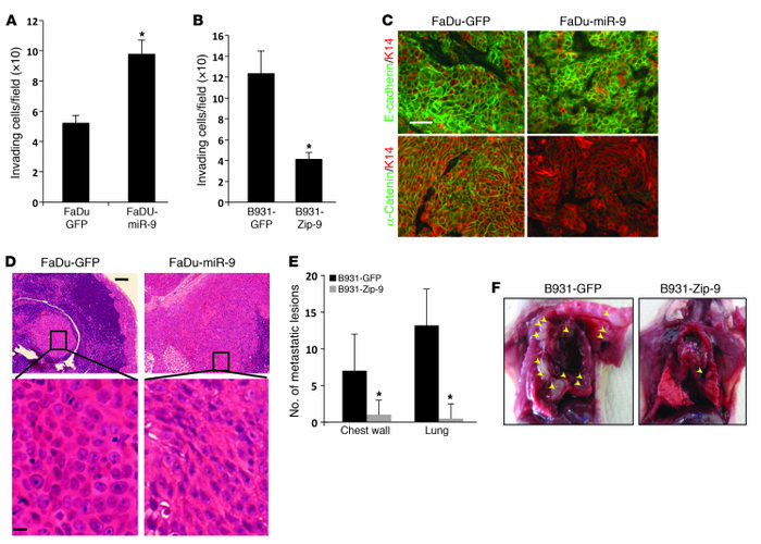 miR-9 promotes invasion and metastasis in mouse and human SCC cells. (A)...
