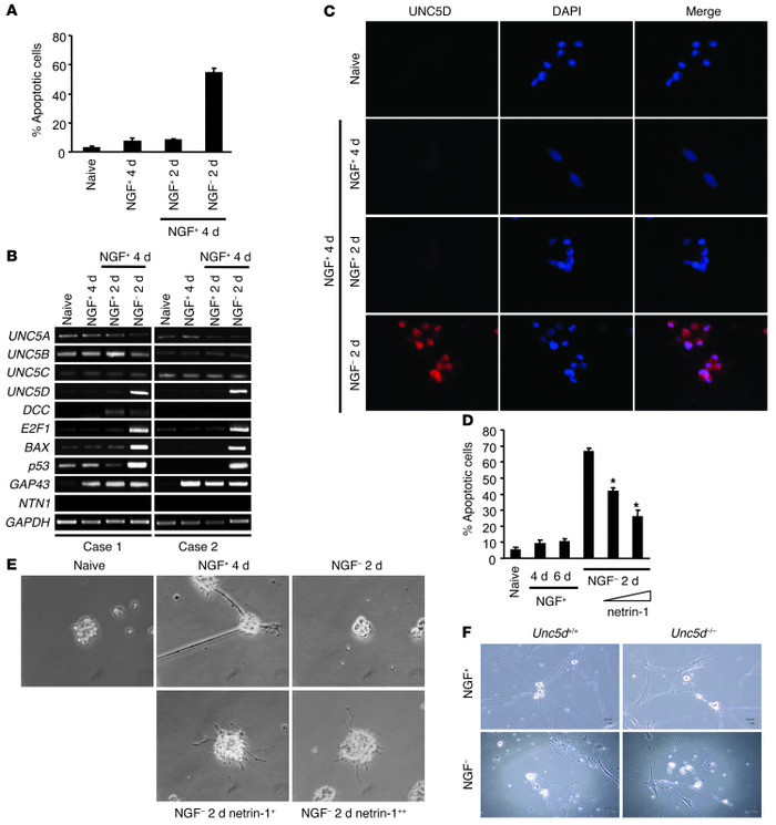 UNC5D is involved in NGF withdrawal–induced apoptosis. (A) Apoptosis ass...