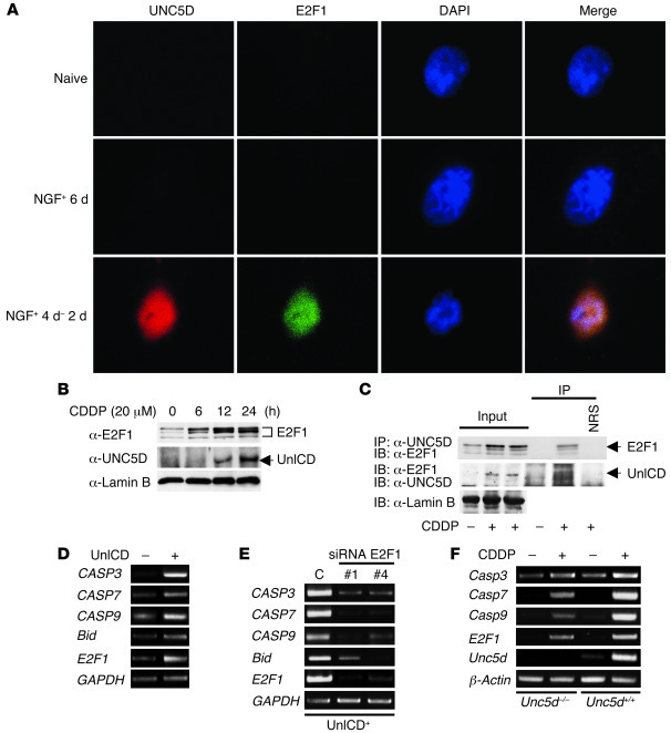 Nuclear UnICD promotes apoptosis as a cofactor of E2F1. (A) Immunofluore...