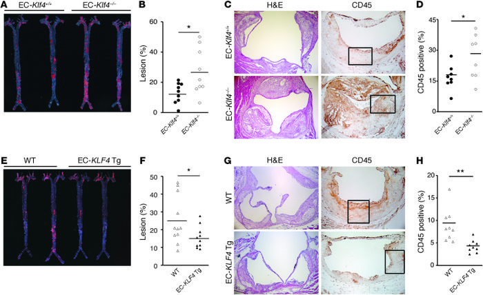 Endothelial KLF4 protects against atherosclerosis. (A–D) BM transplantat...