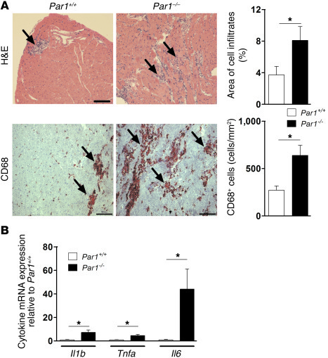 Inflammation in the hearts of CVB3-infected Par1+/+ and Par1–/– mice.   ...