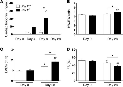 Cardiac injury and function in Par1+/+ and Par1–/– mice after CVB3 infec...