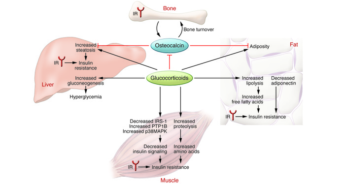 Mechanisms leading to glucocorticoid-mediated insulin resistance. Glucoc...