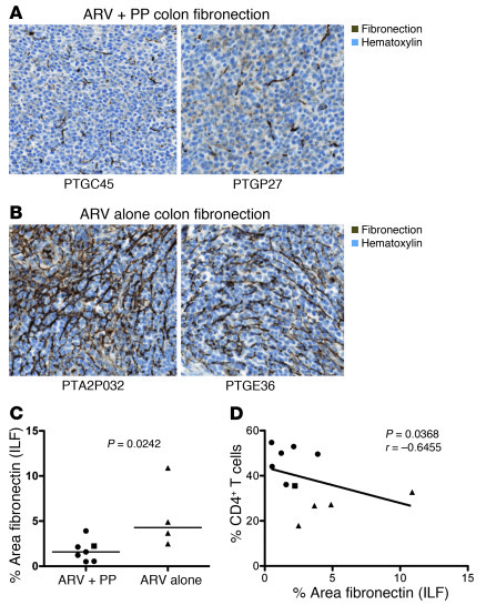 PP treatment reduces fibrosis and is associated with increased CD4+ T ce...
