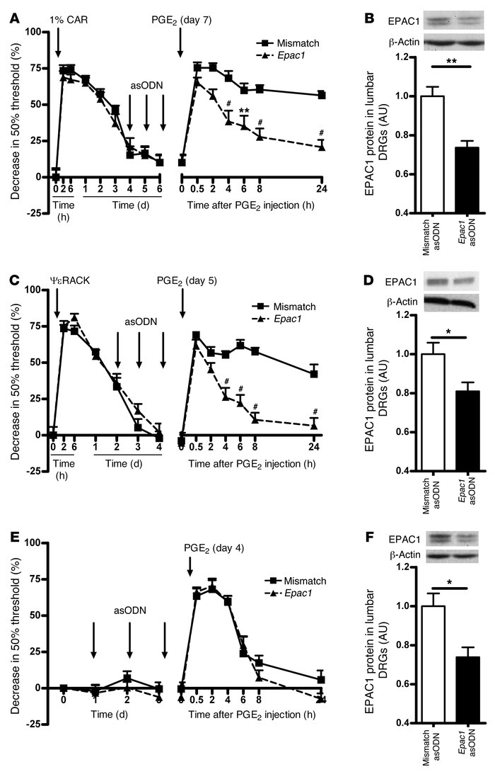 Effect of intrathecal Epac1 asODNs on carrageenan- and ΨεRACK-induced hy...