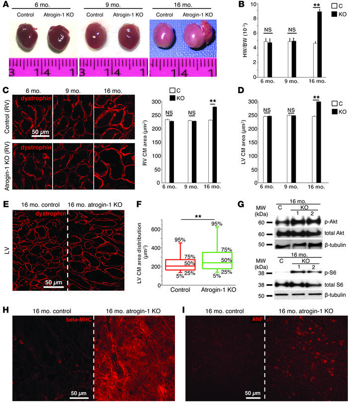 Atrogin-1 KO mice develop an age-related cardiomyopathy. (A) Hearts from...
