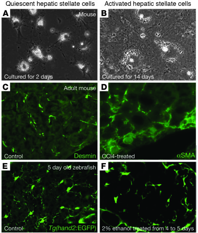 JCI - Hepatic stellate cells in liver development ...