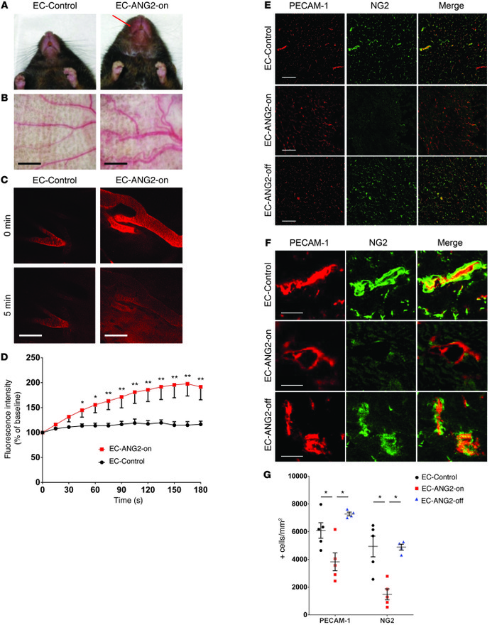 Endothelial ANG2 overexpression induces pericyte loss and increased vasc...