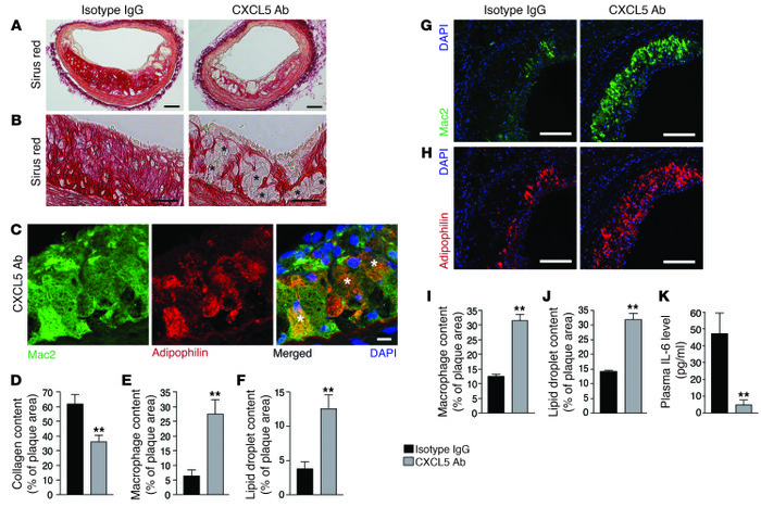 Blockade of CXCL5 is associated with macrophage foam cell accumulation i...