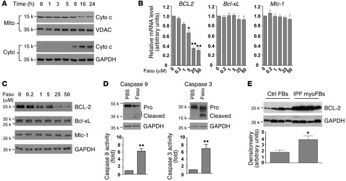 Fasudil promotes myofibroblast apoptosis by BCL-2 downregulation. (A) IP...