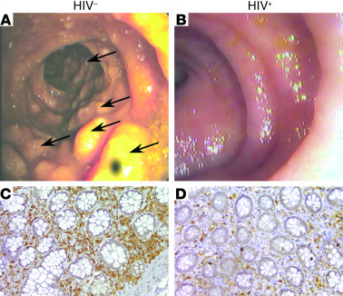 Endoscopic and histological analysis of the terminal ileum in an HIV-uni...
