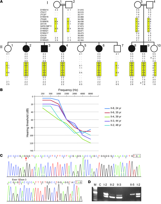 Identification of SYNE4, encoding nesprin-4, as a gene responsible for h...