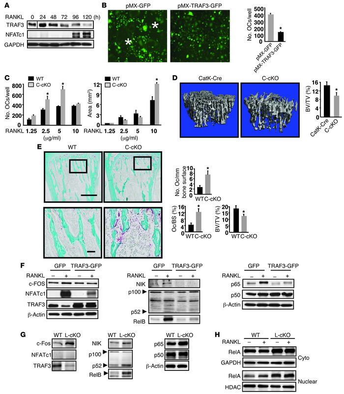 Mice with OC-specific deletion of TRAF3 have increased osteoclastogenesi...