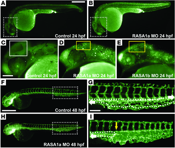 Reduced RASA1 function in zebrafish causes cell death and caudal vessel ...