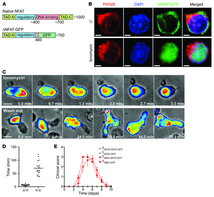 ΔNFAT-GFP as an activation marker of T cells. (A) Native and truncated v...