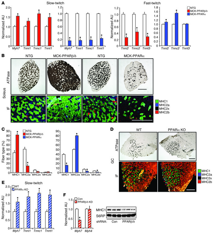 PPARβ/δ and PPARα regulate opposing muscle fiber-type programs. (A) Expr...