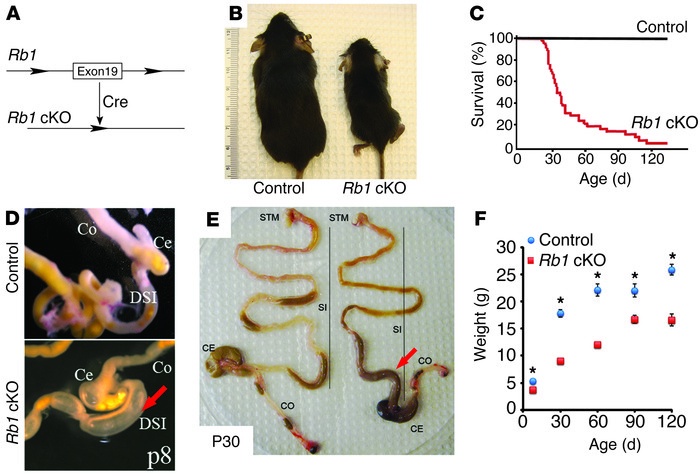 Rb1 cKO mice gain weight slowly and die of intestinal pseudo-obstructio...