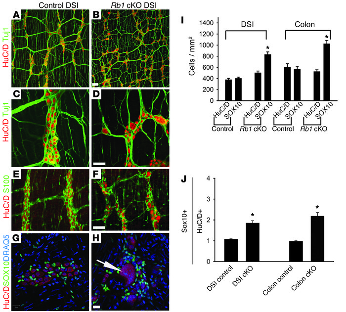 Rb1 cKO mice have disorganized myenteric ganglia with giant neurons and...