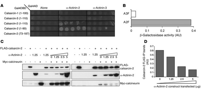 α-Actinin-2 expression influences the inhibition of calcineurin activity...