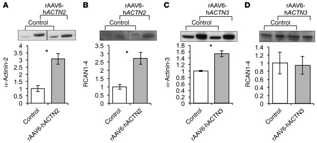 Overexpression of α-actinin-2 in mouse muscle increases RCAN1-4 expressi...