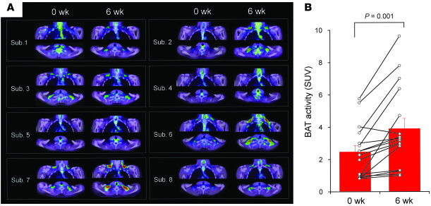 BAT recruitment by chronic cold exposure. FDG-PET/CT images (A) and BAT ...