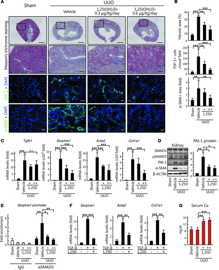 1,25(OH)2D3 suppresses renal fibrosis by inhibiting TGF-β signal transdu...