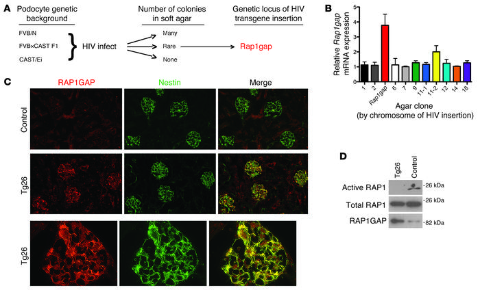 Identification of Rap1gap as a candidate gene for mediating podocyte inj...