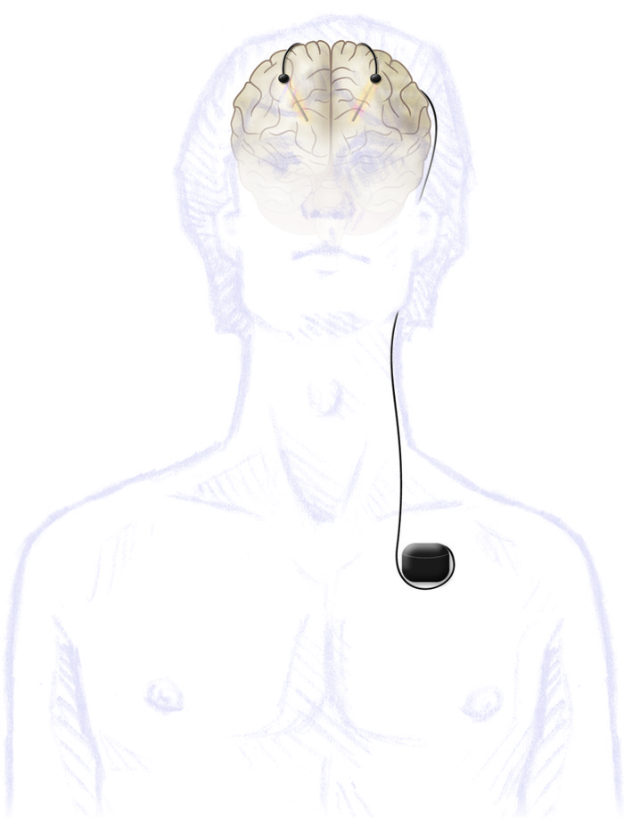 The modern version of the DBS system includes an electrode implanted int...