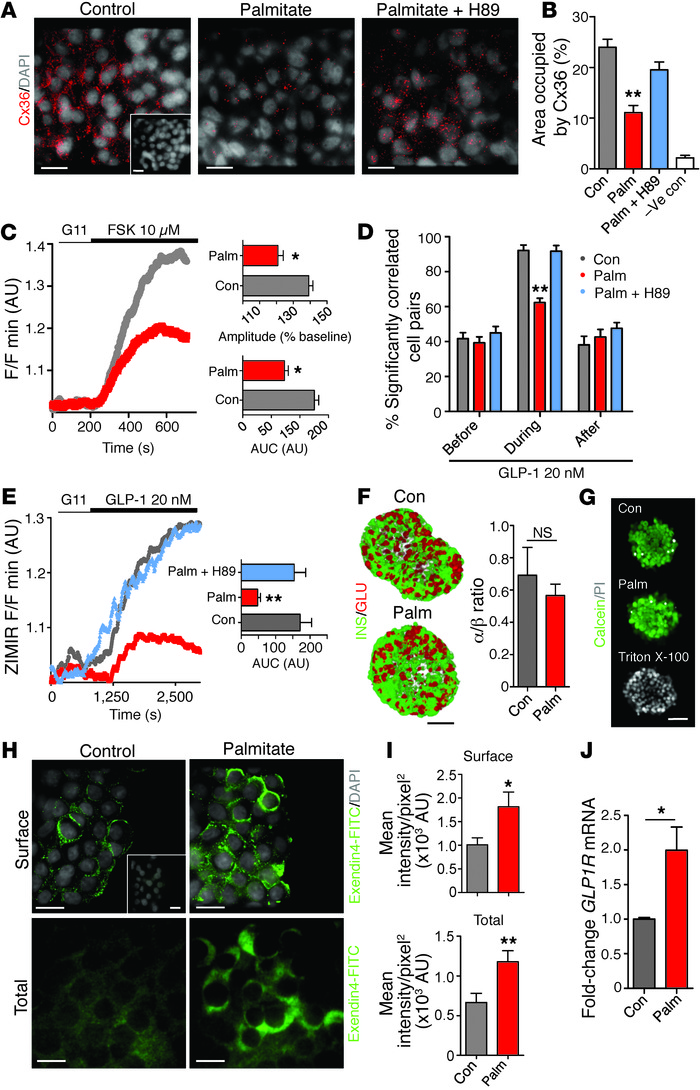 Lipotoxicity disrupts cell-cell communication to impair GLP-1 responses....