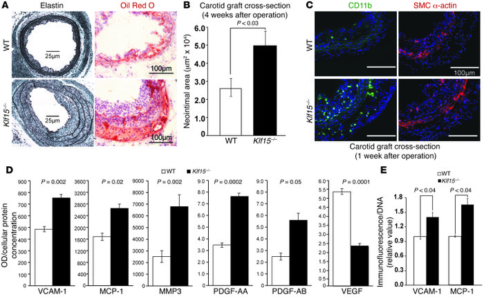 Arterial KLF15 expression reduces atherogenesis. (A and B) Carotid arter...