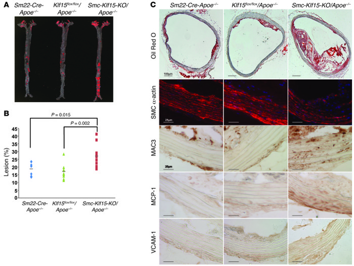 SMC-specific expression of KLF15 suppresses atherosclerosis. (A and B) R...