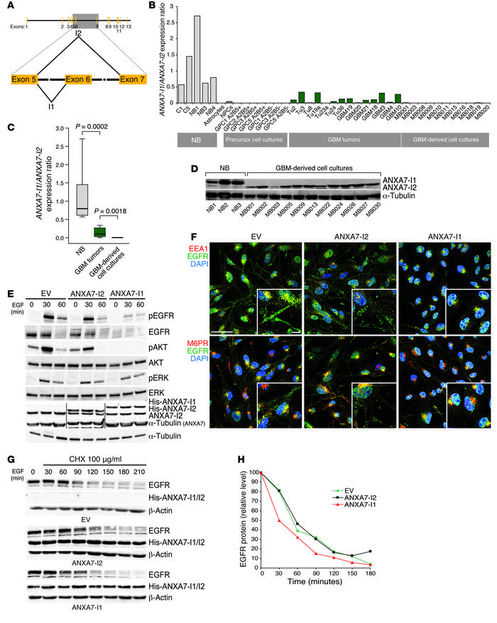 Lineage-specific splicing of a brain-enriched exon in ANXA7 abrogates EG...