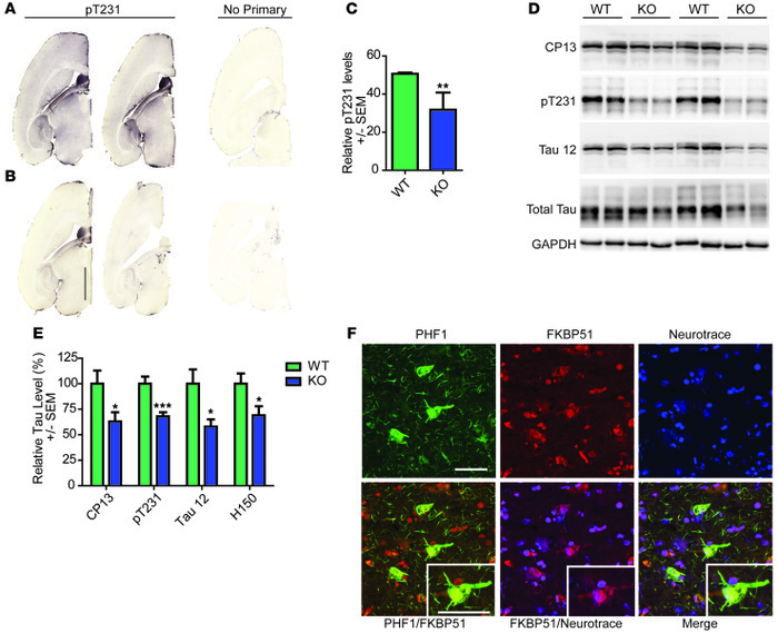 Tau expression is decreased in the Fkbp5–/– mice and associates with FKB...