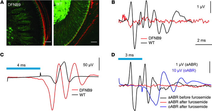 Cochlear optogenetics restores auditory activity in deaf mice. (A) Maxim...