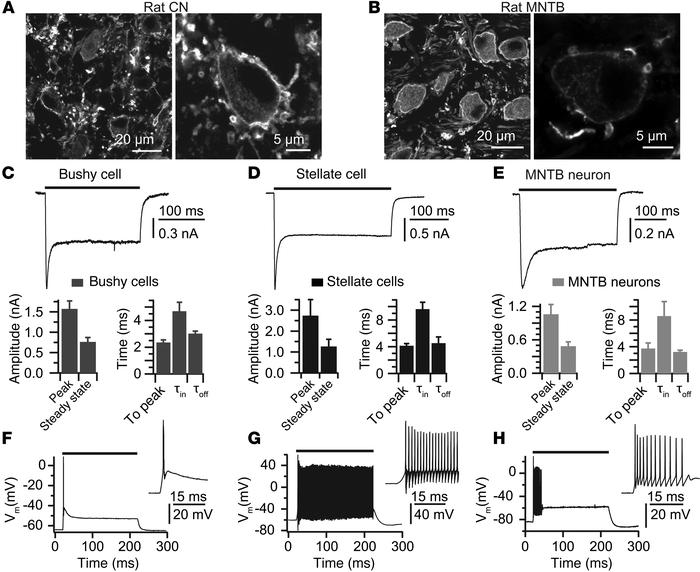 Photoresponses of auditory brainstem neurons in vitro. (A and B) Fluores...