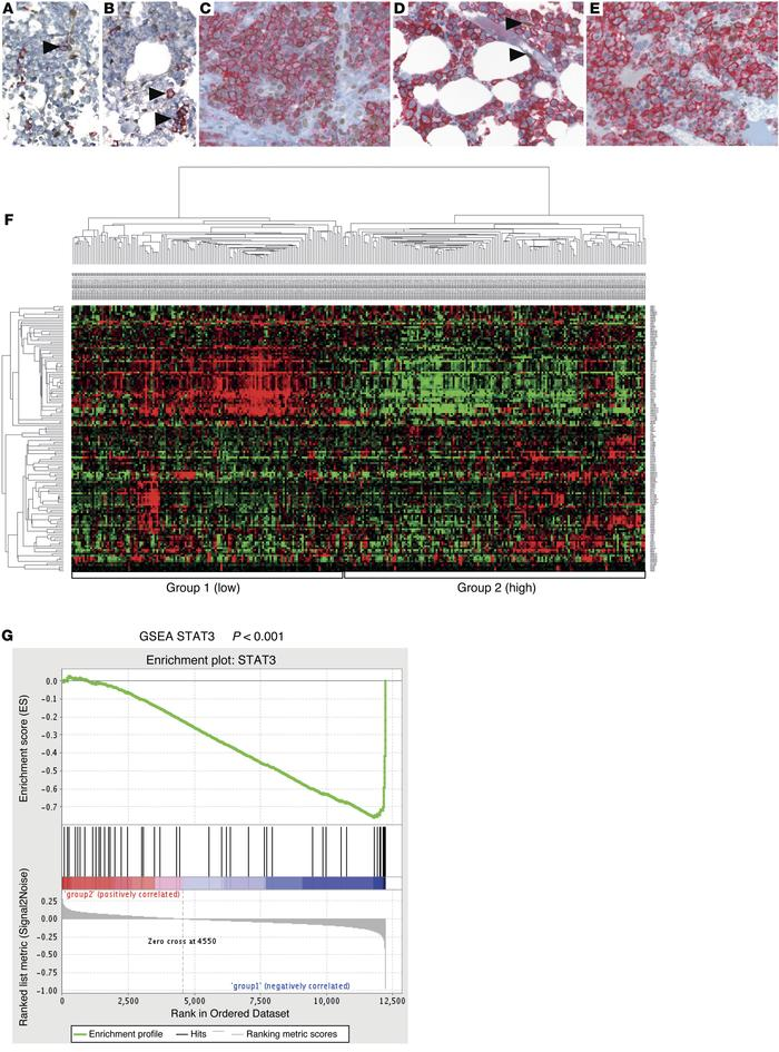 Expression of activated STAT3 and STAT3 target genes is a hallmark of hu...