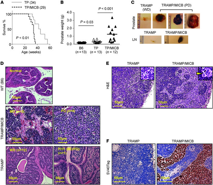 Prostate-specific expression of native MICB promotes the development of ...