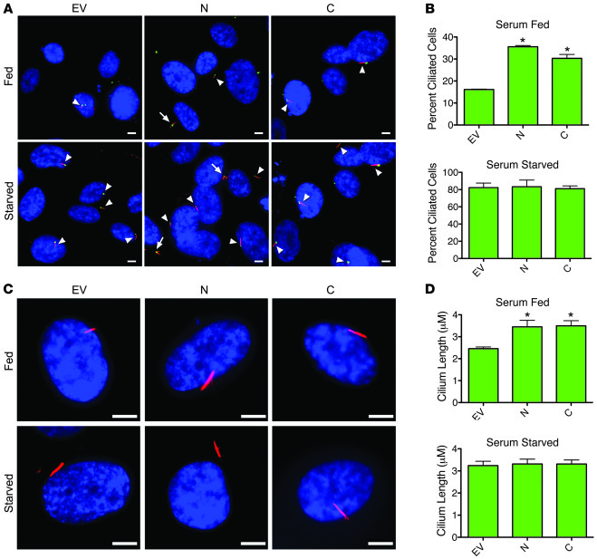 Overexpression of either N- or C-terminal regulatory region of CEP290 ab...