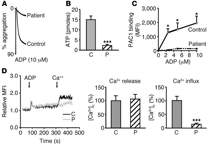 ADP-induced activation of platelets from the patient with vWD-type 2B. C...