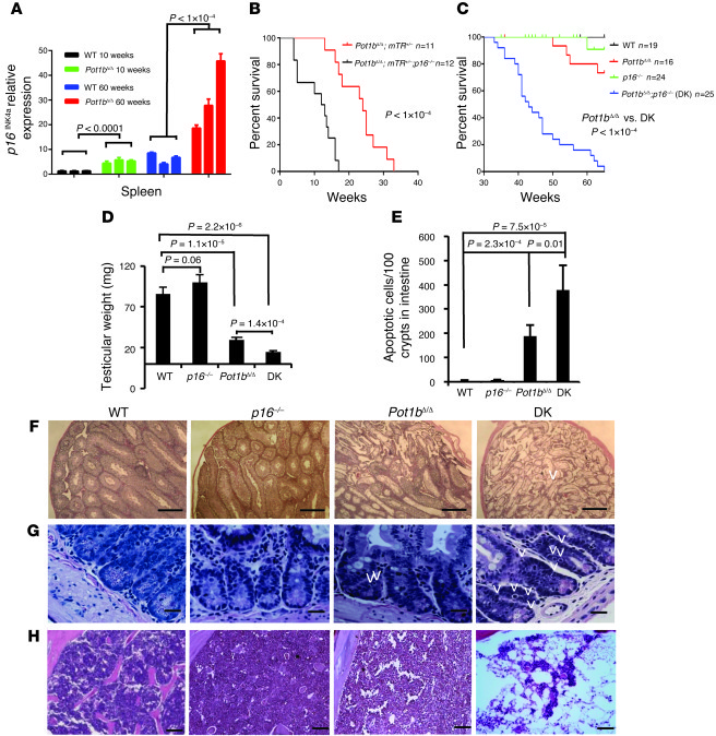 Loss of p16INK4a accelerates premature aging phenotypes in Pot1bΔ/Δ;mTR+...