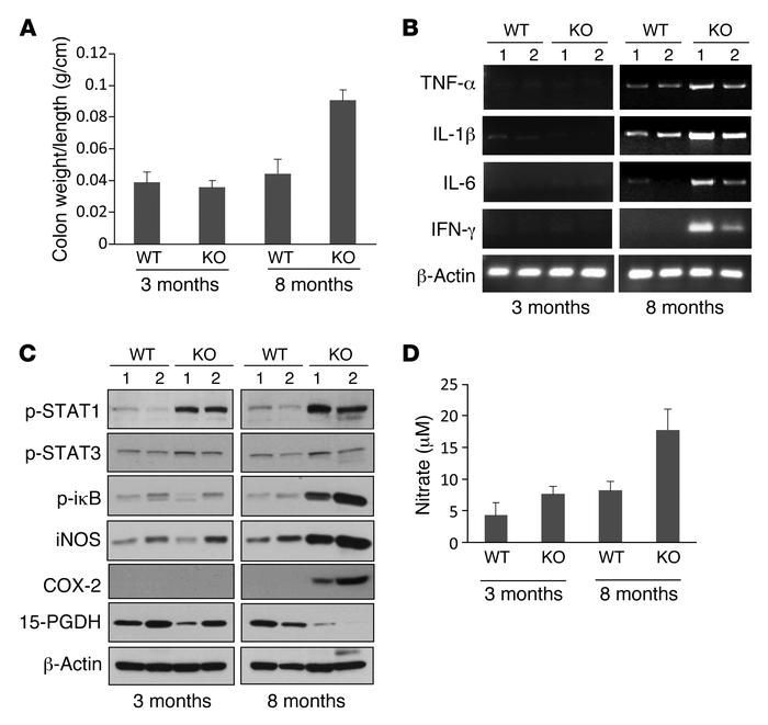 Smad4Tko mice develop CAC. Biomarkers of disease progression were defin...