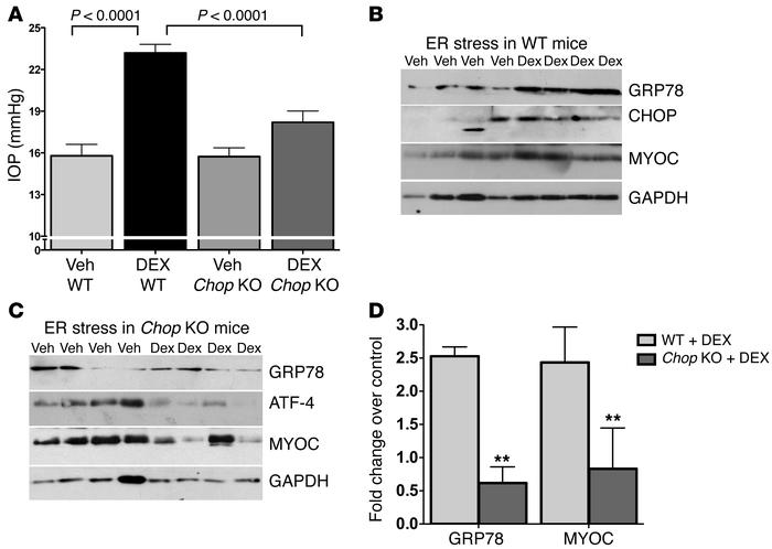 Deletion of Chop protects against dexamethasone-induced ocular hypertens...