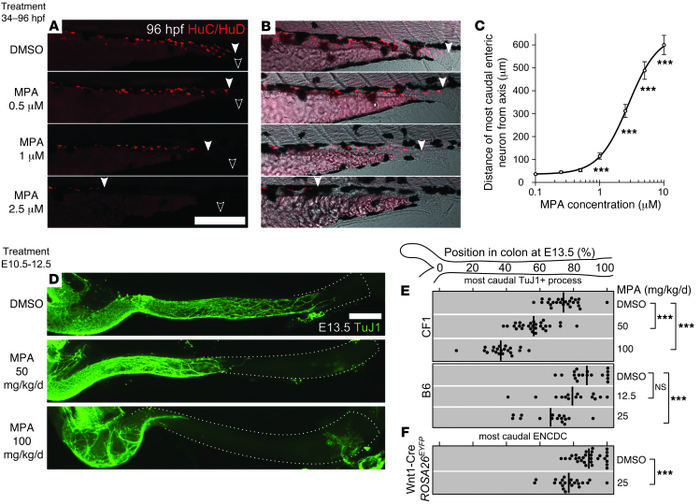 MPA inhibited ENS development in developing zebrafish and mouse. (A–C) D...