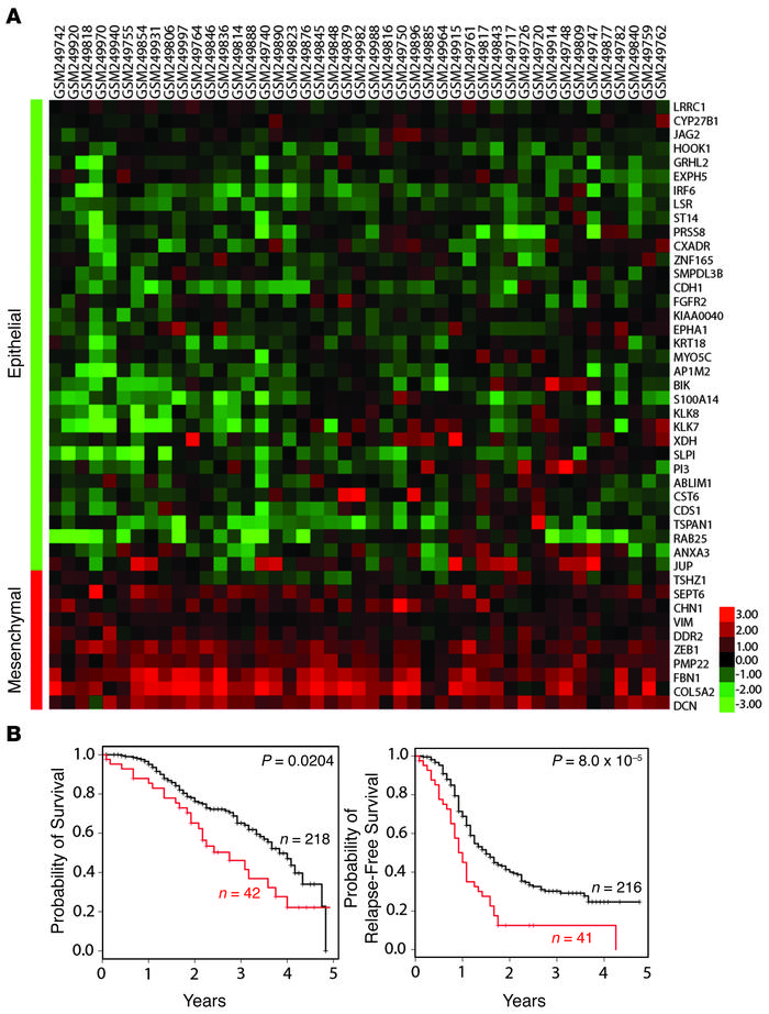Mesenchymal gene signature in ovarian cancer data sets. (A) Samples in t...